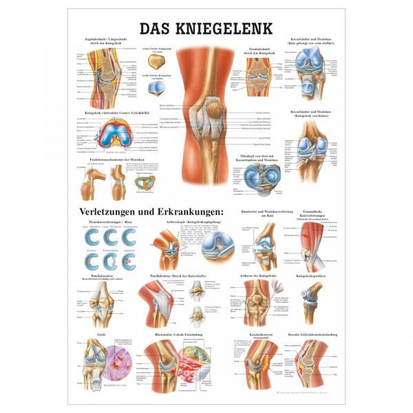 Anatomische Lehrtafel  -  Das Kniegelenk