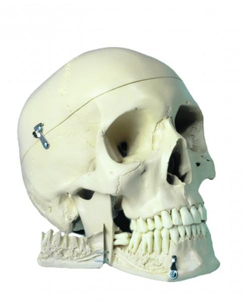 Menschlicher Schädel - 4 tlg.